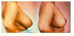 Παραγγελία Ανόρθωση στήθους