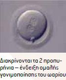 Παραγγελία IVF embryo donation